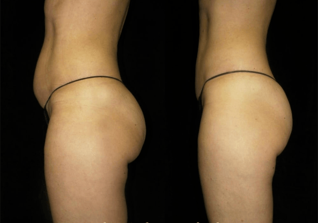 Before and after photo of trusculpt patient