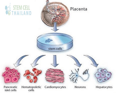 NYC PCP | Internal Medicine Upper East Side | Stem Cell Therapy